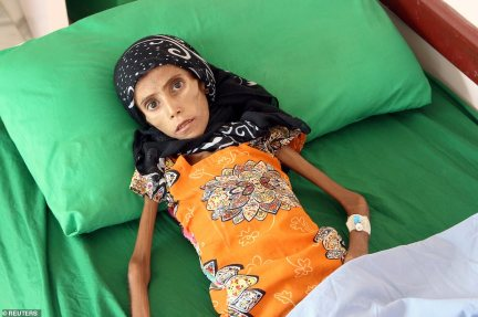 Fatima, her sister and their nine siblings were forced to flee their home with their father and now live under a tree