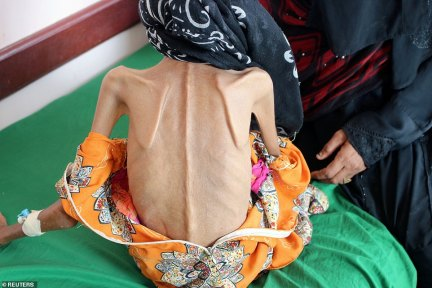 Wasting away: A photo of the 12-year-old shows her skin stretched over her shoulder-blades and spine