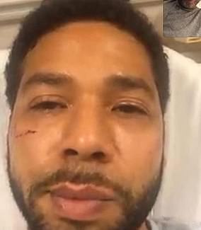 Smollet is seen with a cut cheek on Jan. 29