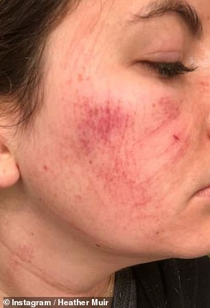 Horrifying: The treatment was offered to Heather as a free 'red carpet' facial by a board certified master esthetician to try out for her readers