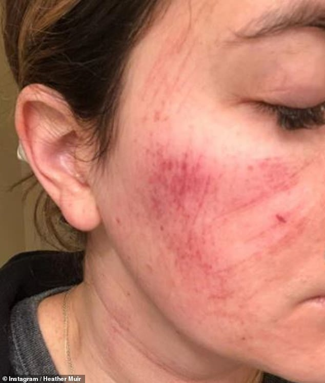 Shocking:Heather Muir, beauty director for Health and Real Simple, shared horrifying images of her skin after testing out a facial treatment