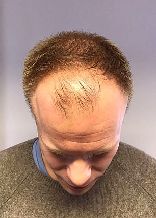 The married father-of-two had his new hairline created at Ryan Giggs' Cheshire MHR Clinic. His procedure saw 3700 hairs extracted from the back of his head. Pictured: King's hair before