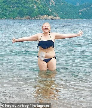 Several years on, she is refusing to let her condition hold her back, and swims and wears bikinis despite her stoma bag