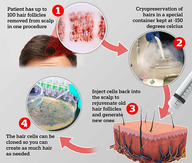 Hair follicles are removed from the scalp and stored in cryopreservation. Later, cells that have been multiplied in the lab can be injected back into the scalp