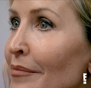 Botched: Ellen's nose has a sharp, 45-degree slant after multiple corrective rhinoplasties
