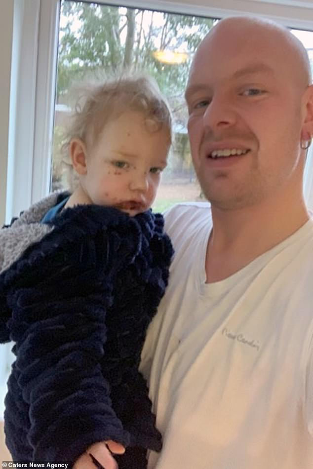 Herpes can be very serious in newborns due to their immune systems not being strong enough to fight off the infection (pictured with his father, Mr Briggs)