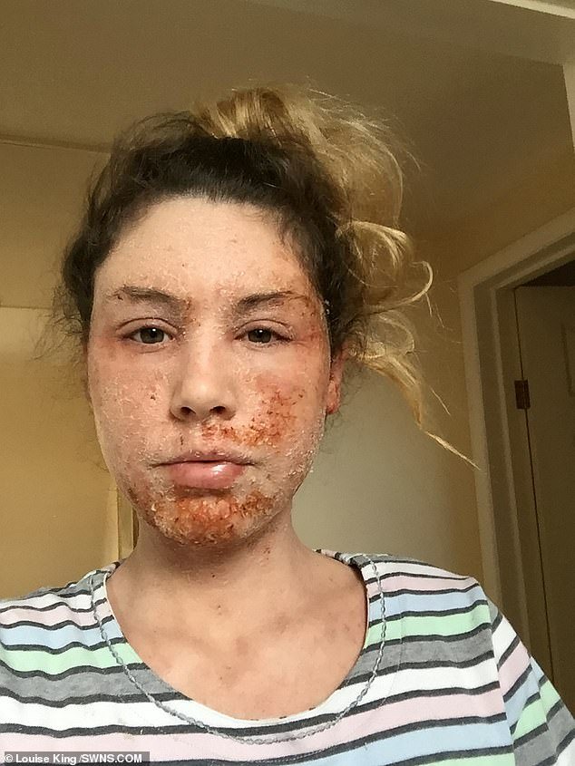 Miss King said her whole facing is peeling off and she looks like a 'lizard', as well as suffering fatigue, sickness, sudden weight loss, depression, forgetfulness and confusion