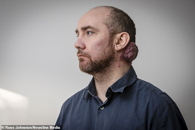 Don Wright, 48, has waited six years for surgery to remove a 'hideous' growth on his neck called ahaemangioma, which consists of an abnormally dense group of extra blood vessels