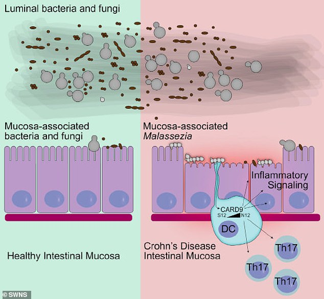 Researchers discovered that dandruff fungus lives in the intestines of many people, but in most cases does not trigger a response (left). Some people, however, suffer from inflammation (right)