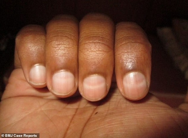 The unnamed climber, 27, was left with matching white lines running horizontally across all his fingernails. His doctor told him the condition – called Mees' lines – was caused by a lack of oxygen while he was climbing a mountain