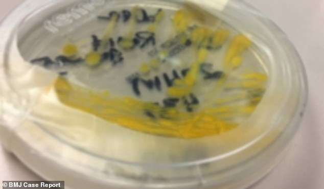 Scientists identified the bacteriadue to it producing a yellow pigment when exposed to light (pictured). This prompted them to add another antibiotic to the man's treatment regimen