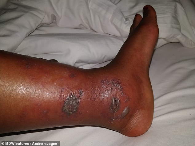 Ms Jagne had initially been given antibiotics by her doctor, but while on holiday in Egypt, her legs felt like they were on fire as ulcers grew