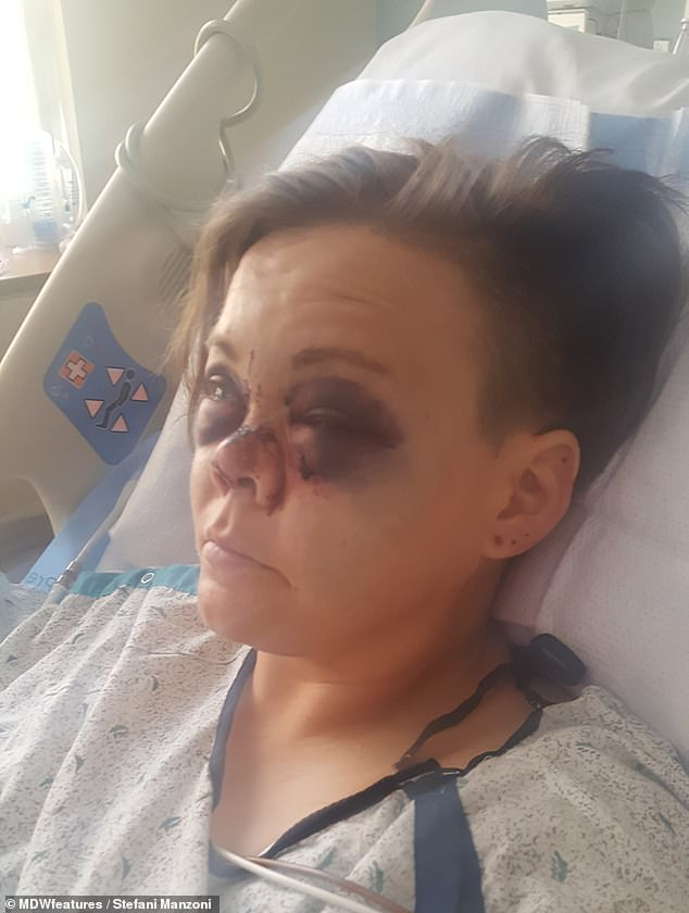 Mrs Manzoni's eye sockets and nose were shattered by the accident, which also broke her arm in two places and fractured her skull (pictured in hospital)