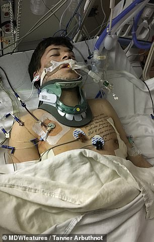 Pictured in the induced coma, Mr Arbuthnot's family were told to say goodbye, but he shocked everyone with his recovery