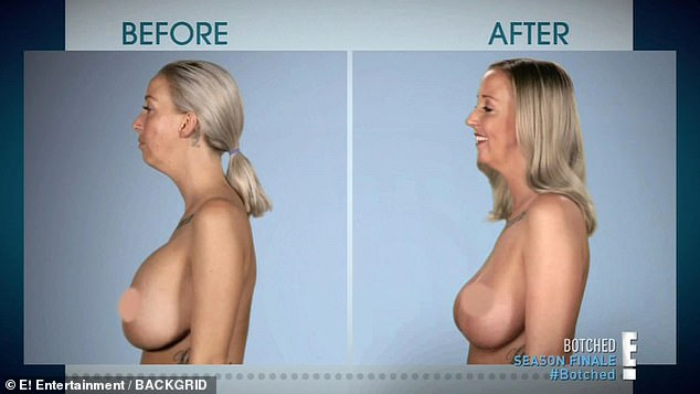 Mother with DD breasts that looked like 'upside down zucchinis' has her implants removed by Botched doctors Dr Paul Nassif and Dr Terry Dubrow