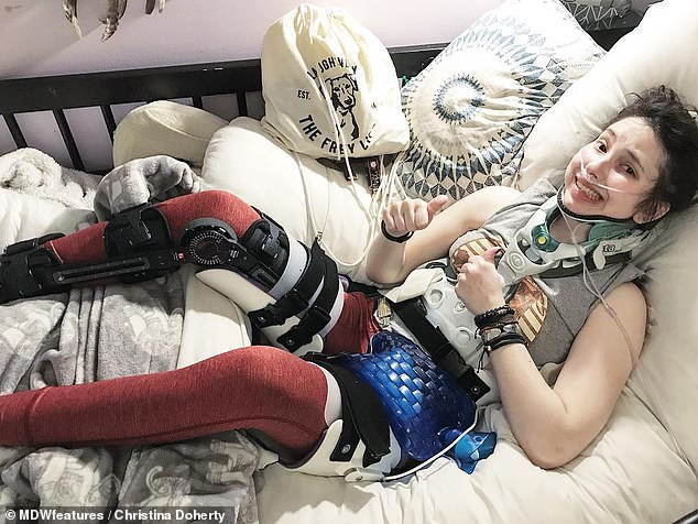 Miss Doherty has had an operation to have the bones fused together in her lower leg as her foot was at risk of 'slipping away'. Pictured, wearing a spine and leg brace at home