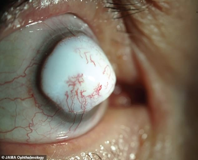 The 74-year-old - who has not been named - was referred to a cancer clinic when a 10x10mm white lump (pictured) formed where his right pupil should be. The mass developed two years after he underwent cataract surgery and was later identified as being a corneal keloid