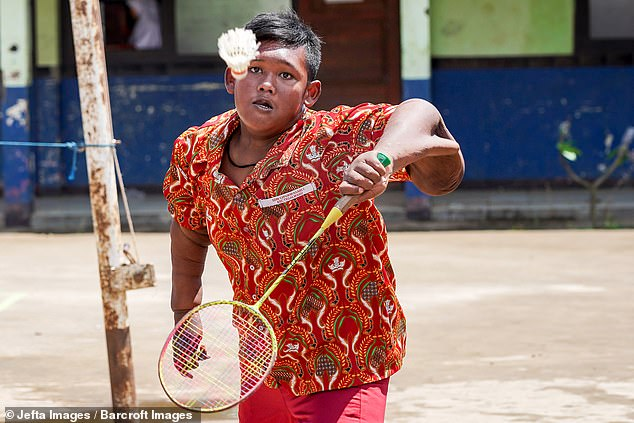 Arya can now play badminton with his friends, but his loose arm skin 'hangs down'