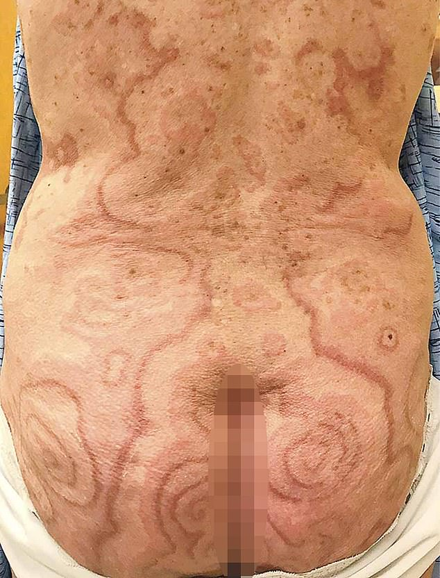 A 74-year-old woman form Kansas who had a rash of swirly patches all over her body discovers it is a rare sign of anal cancer. Pictured, the rash