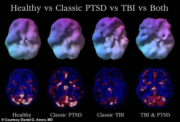 These brain scans, taken in Dr Daniel Amen's practice, show the difference between PTSD, a healthy brain, and TBI. In PTSD, four areas become overactive, which drives negative thoughts to loop