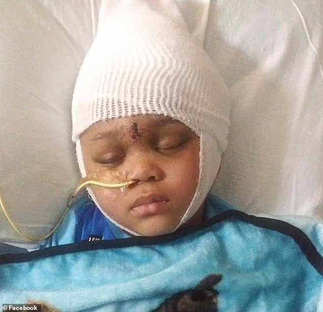 The bullet entered Na'vaun's forehead, between the eyes, requiring that part of his brain and skull be removed. Doctors believed that he would be either brain dead or never able to walk