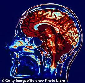Your brain shrinks when you are stressed (stock image)
