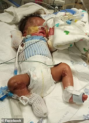 Ja'bari (pictured) was placed on life support and doctors told his parents there was nothing more they could do