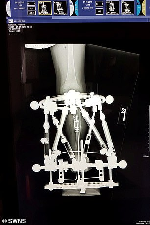 Victoria's right leg had to be amputated due to the severity of her condition. Pins were then put into her left limb before a fixator (pictured) - a stabilising frame that holds broken bones in place - was attached