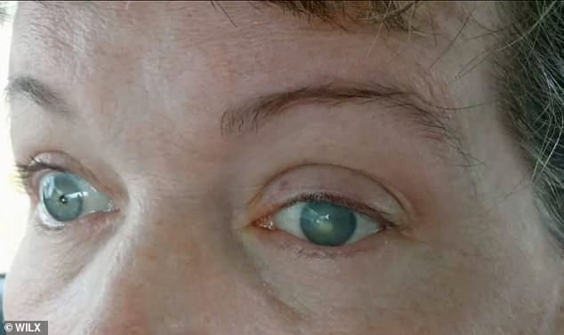 Doctors believe Lawson contracted the infection by washing her contacts in tap water or swimming in a lake with the lenses in. Pictured: Lawson's infected eye