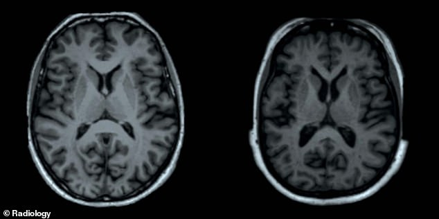 MRI scan again shows the reduced gray substance in the larger participant (right)