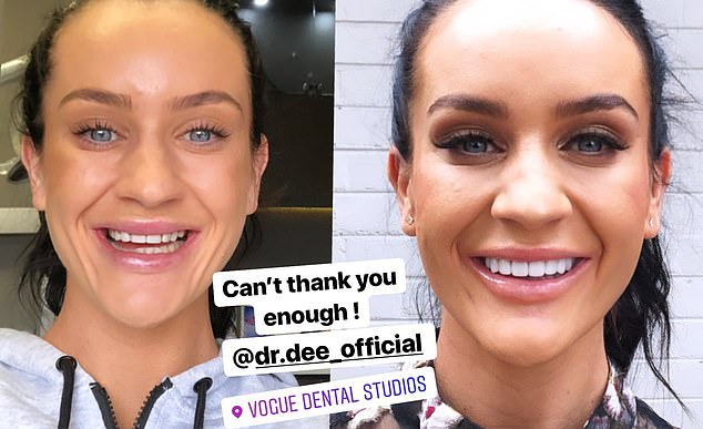 My, what a smile you have! A look at MAFS star Ines Basic's remarkable transformation after getting porcelain veneers (pictured L, before, and R, after)