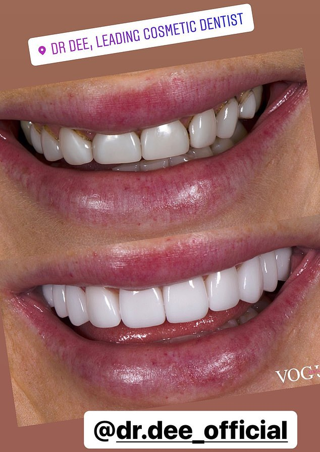 What a difference:The former legal assistant had a deep clean, getting an abundance of plaque removed from her teeth before the veneers were applied (Pictured top, before, and bottom, after)