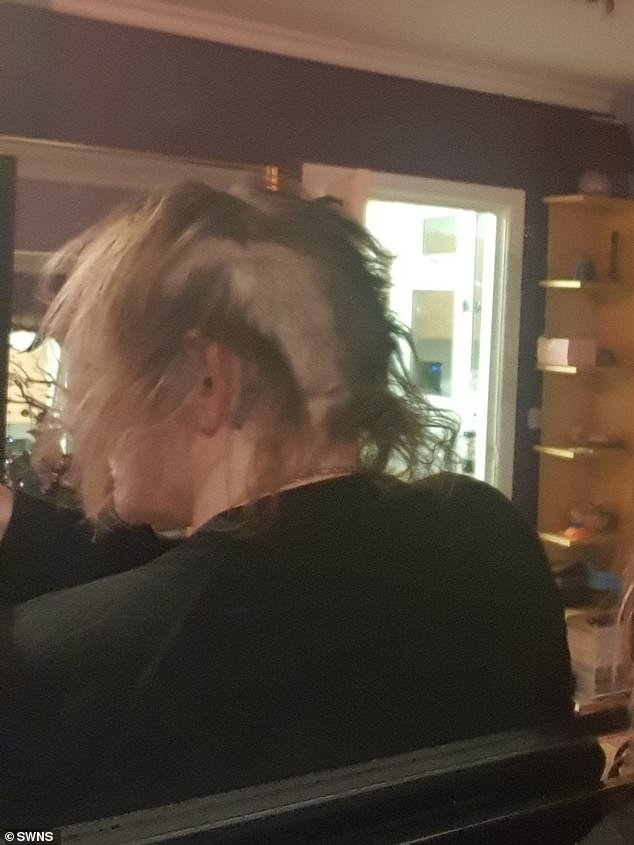 A picture showing the damage to Suzie's hair after the assault. The mother-of-three said she suffered through agonising pain