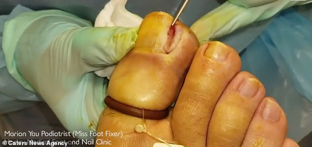 She then prodded the underlying soft tissue to determine where it met the patient's nail