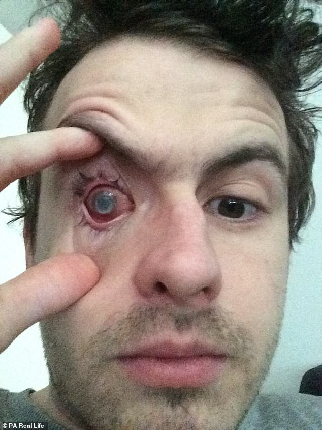 Nick Humphreys, 29, has been left partially blind (pictured) because a parasite started living in his right eye after he showered with contact lenses in