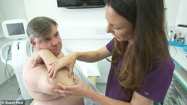 Scott, 43, from Norfolk, reveals he's put up with the severe cysts, blackheads and acne that cover his entire back for over twenty years. He features on tonight's episode of The Bad Skin Clinic on Quest Red