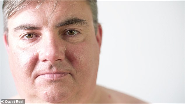 Scott (pictured) says his skin condition gets in the way of both his personal and professional life - and his wife admits she struggles too