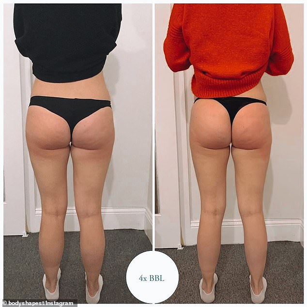 'It's like filler for your butt,' Body Shapest's Crystal Mckeith said of her Brazilian butt lift treatments. (Pictured: One of Crystal's clients before and after four BBL treatments)