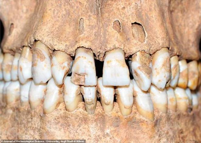 Although it was reserved for heinous acts, like spreading the black death, researchers say it is possible this individual was subjected to the torrid fate as a result of being a 'social freak'. Analysis of his remains reveals he was considerably shorter than most people (4.3 inches/11 centimetres) and had buckled teeth (pictured)