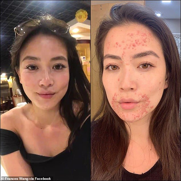 CBS News Miami anchor Frances Wang, 27 (left and right), has been battling eczema, which causes red and itchy rashes, for years