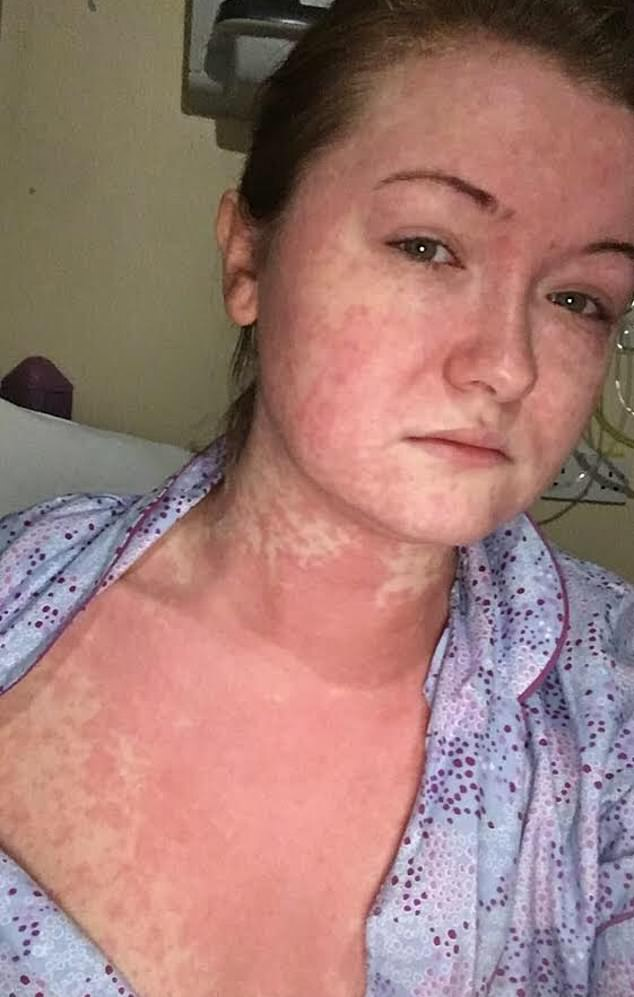 The decision appeared to have no effect on Ellie's life until December 2017, when she suddenly broke out in red blotches (pictured) and her temperature soared to 39C (102.2F)