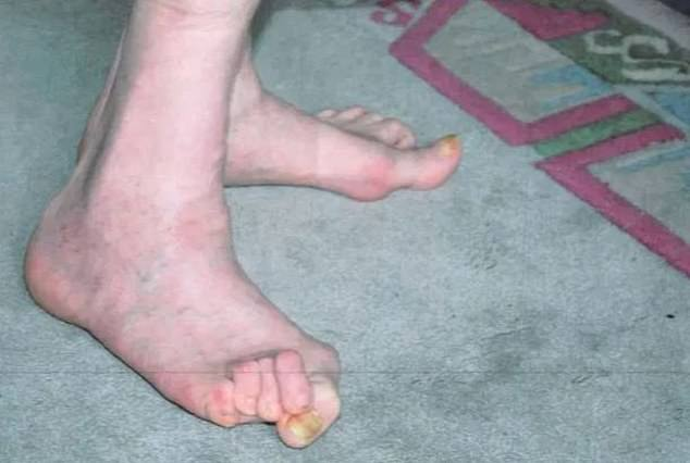 The changes to the man's disability allowance happened when he was transferred from older benefit DLA a few months ago. (The man's arthritis is so severe the joints on his hands and feet are locked into one position pictured)