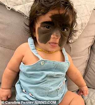 The seven-month-old baby was born with congenital melanocytic naevus
