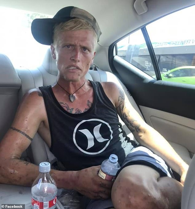 Cody Bishop pictured (above) in an image posted on social media by his mother shows him gaunt and emaciated with track marks along his forearms from heroin addiction