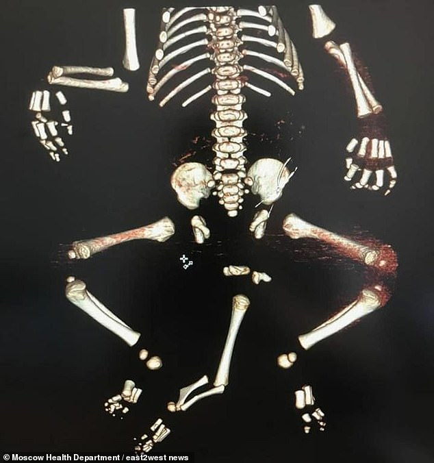 Medics in Moscow believe the third leg, that had two heels and was located between his two other legs, came from a twin that did not fully develop in the mother's womb. Pictured: A computer tomography image of the baby boy with three legs