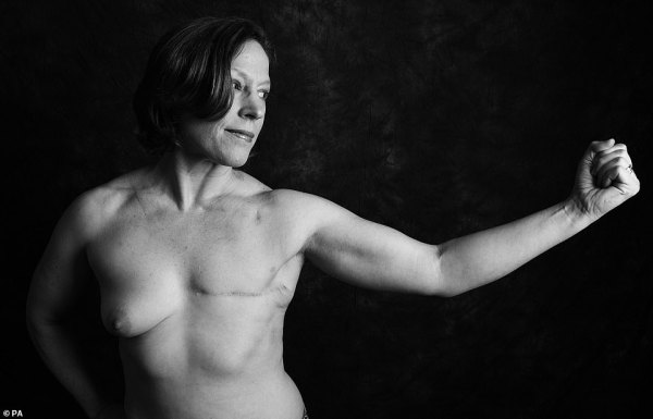 Cancer patients show scars in charity photoshoot