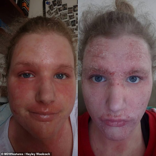 Hayley Woolcock, 22, from Perth, has suffered with eczema since she was born