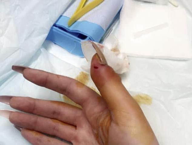 The infection spread to several other fingers but the acrylic nails were able to be safely removed and the infection cleared with antibiotics