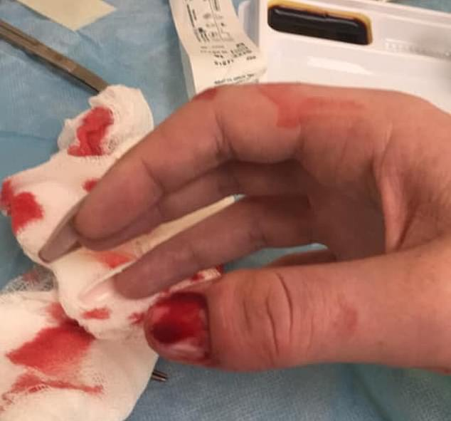Doctors were forced to rip off her nail as the infection spread through her nail bed and she fears it will never grow back and leave her disfigured.