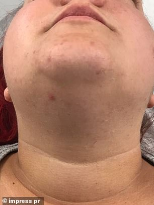 After undergoing a hair removal treatment, Sophie was left with clear skin with no  'horrible bumps and spots from ingrown hairs'